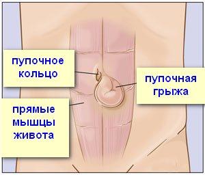Umbilical-hernia-surgery