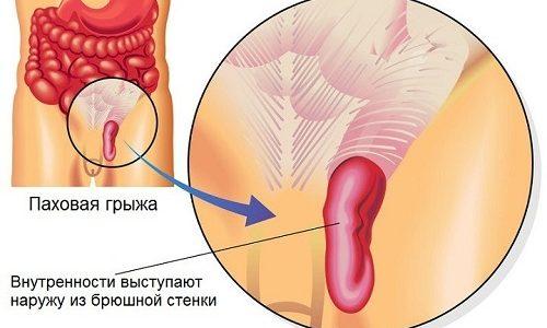 Ущемленная паховая грыжа — постепенное или резкое сдавливание органа брюшной полости в области паха, при котором нарушается кровообращение в поврежденном участке, что в дальнейшем может привести к его отмиранию