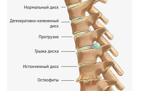 Грыжа межпозвоночного диска - заболевание позвоночника, возникающее на фоне остеохондроза.