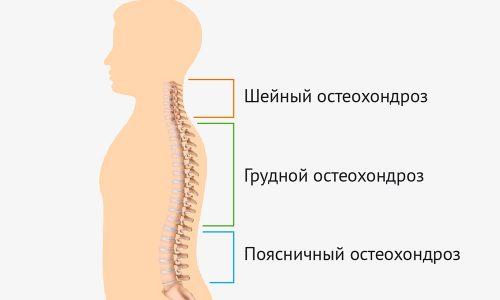 Остеохондроз по-другому называют «старением позвоночника». Это значит, что межпозвоночные диски теряют эластичность, поэтому часто остеохондроз предшествует грыжам