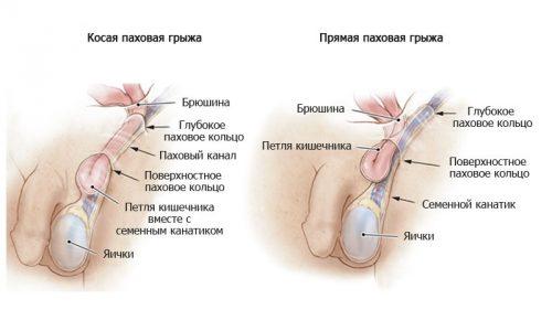 От размеров грыжевого выпячивания, сложности операции, ее продолжительности зависит период выздоровления и ношения бандажа