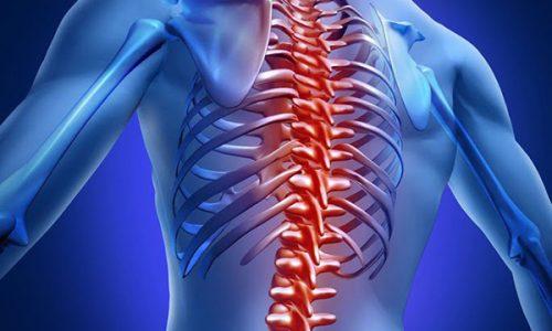 Множественные, быстро прогрессирующие грыжи приводят к функциональной неполноценности сегмента позвоночника