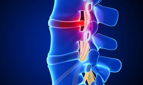 Парамедианная грыжа - патология межпозвонковых дисков с их смещением внутрь канала позвоночника, что провоцирует одностороннюю или двухстороннюю компрессию спинного мозга