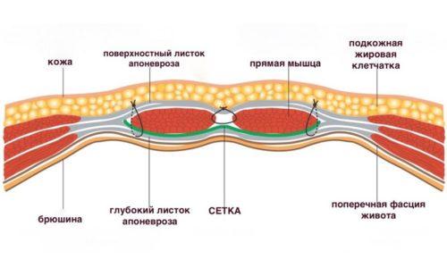 Главное в лечении грыжи - закрыть грыжевое отверстие (место выпячивания)