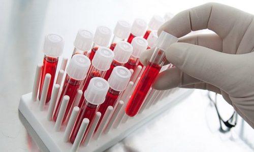 Определить наличие спинномозговой грыжи у плода позволяет анализ крови матери на альфа-фетопротеин, т.е. белка, который выделяется при разрушении оболочки нервных волокон