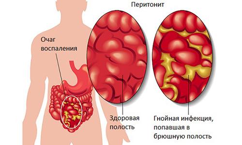 Если мужчине вовремя не оказывается медицинская помощь, у него развивается перитонит (воспаление брюшины)