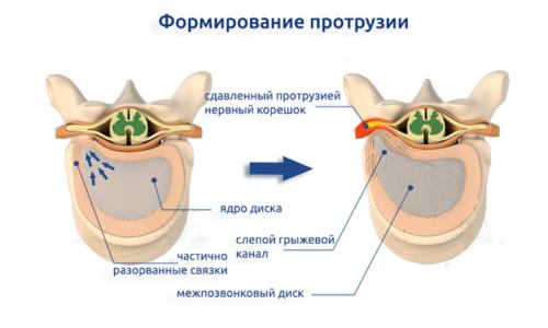 Протрузия - это выпячивание или выход межпозвоночного диска за пределы позвонков в область спинномозгового канала на 2-5 мм