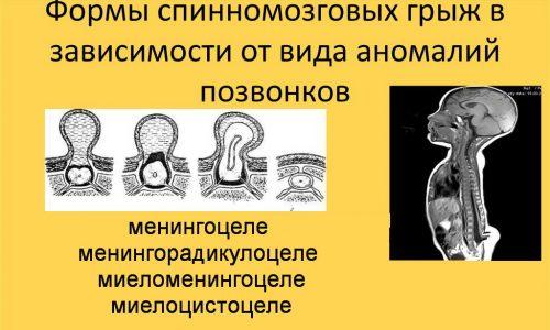 В зависимости от структуры и содержания мешка выделяются 4 формы врожденной грыжи