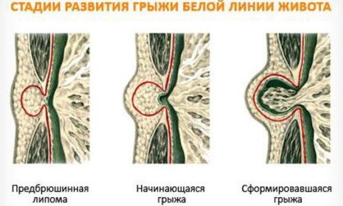 Брюшная стенка многослойная и состоит из соединительных тканей, жировой предбрюшинной клетчатки, мышц, скрепляющихся сухожилиями по вертикальной середине живота. Если брюшина слабая, мышцы расходятся