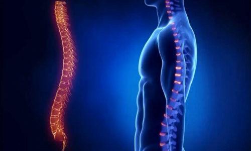 К осложнениям после операции относят Эпидурит - воспалительный процесс оболочек спинного мозга