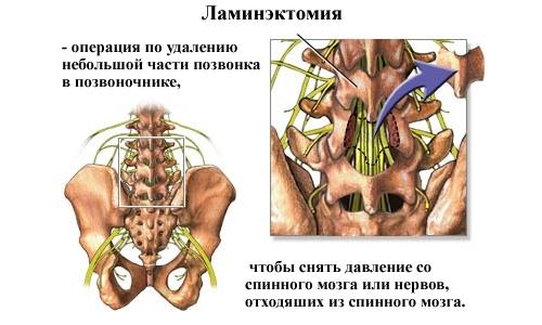 При проведении ламинэктомии возможна установка импланта вместо удаленного фрагмента кости