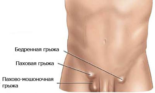Паховая грыжа у мальчиков характеризуется тем, что под кожей в области паха формируется одно или несколько выпячиваний