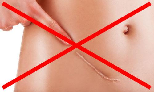 Главными преимуществами лапароскопии являются отсутствие постоперационных швов и рубцов