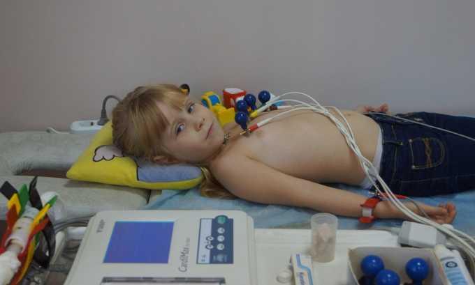 Экг сердца назначается за несколько дней до операции при пупочной грыжи у ребенка