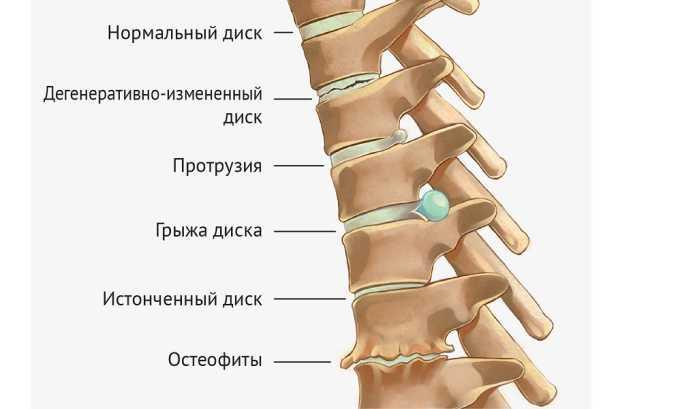 Карипазим назначают при грыже межпозвоночных дисков, остеохондрозе всех отделов позвоночника, радикулите