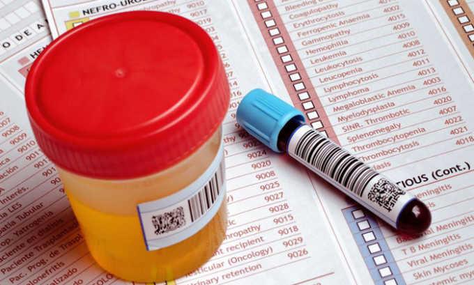 При плановой операции врач назначает клинические анализы мочи и крови, анализ на глюкозу крови