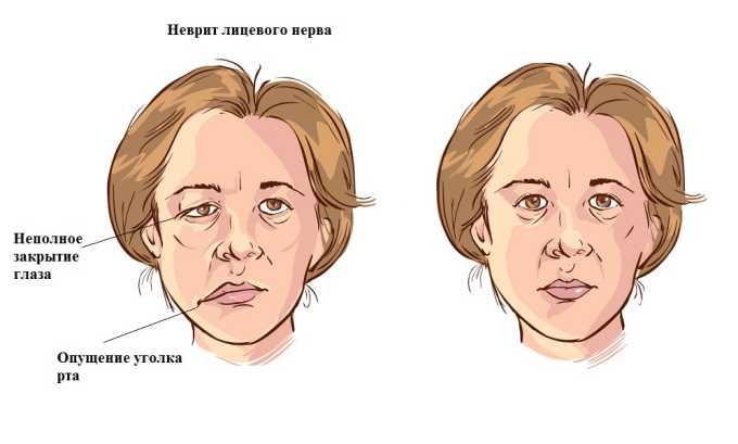 Карипазим применяется при неврите лицевого нерва