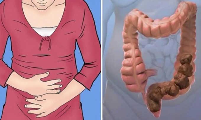Длительные запоры могут быть провоцирующим фактором грыжи желудка