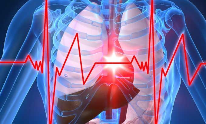 Операция по удалению грыжи не проводится, если есть тяжелые пороки сердца и другие врожденные аномалии, при наличии которых организм может не выдержать операционного вмешательства и наркоза
