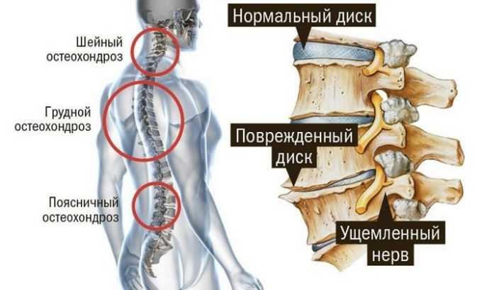 Протрузия у человека может быть вызвана остеохондрозом или повреждением хрящевой ткани позвонков
