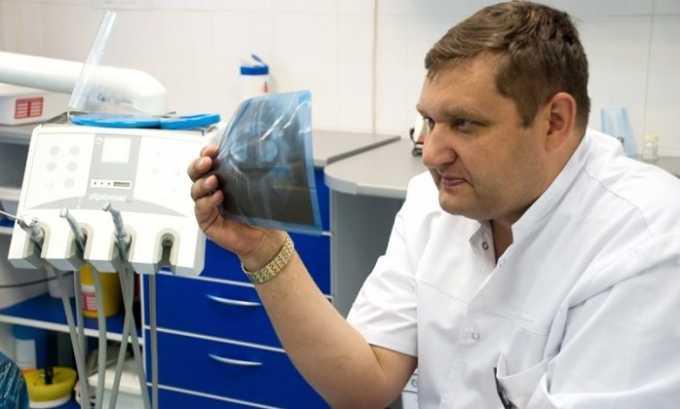 Врач-вертебролог — это ортопед, специализирующийся на болезнях позвоночника. Он должен определить место локализации боли, время ее возникновения и возможные причины