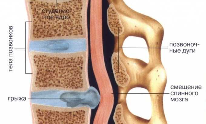 Смещение студенистого ядра в области грудного отдела позвоночника приводит к сдавливанию кровеносных сосудов и нервных окончаний