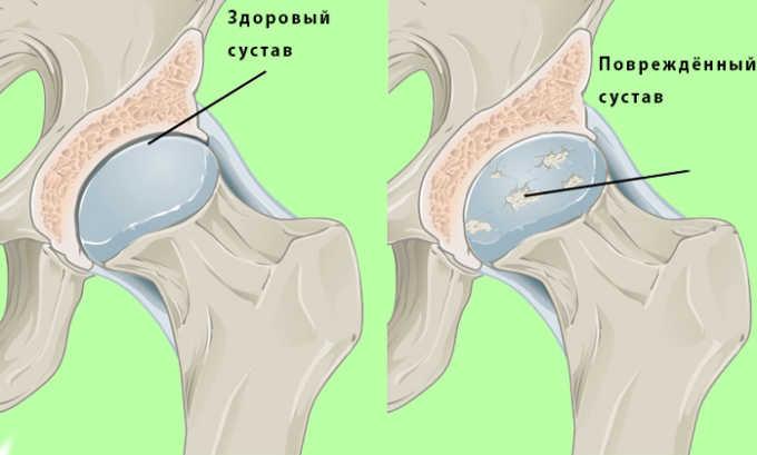 Во время наложения грубых швов, хирург иногда травмирует тазобедренный сустав. Это может привести к развитию дегенеративно-дистрофических процессов в хрящевой ткани