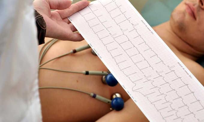 Электрокардиограмму проводят при подозрении на патологии сердца