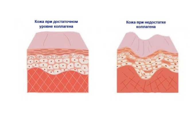 Часто причиной пупочной грыжи становится нехватка коллагена в соединительных тканях ребенка