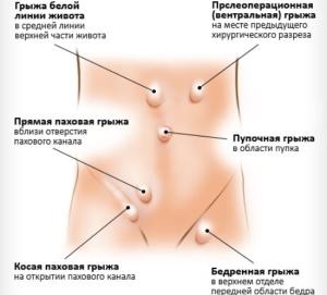 gryzha