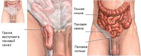 Фото: локализация паховой грыжи у мужчин