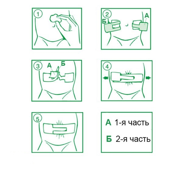 Фото: как наклеить пластырь при пупочной грыже у грудничков