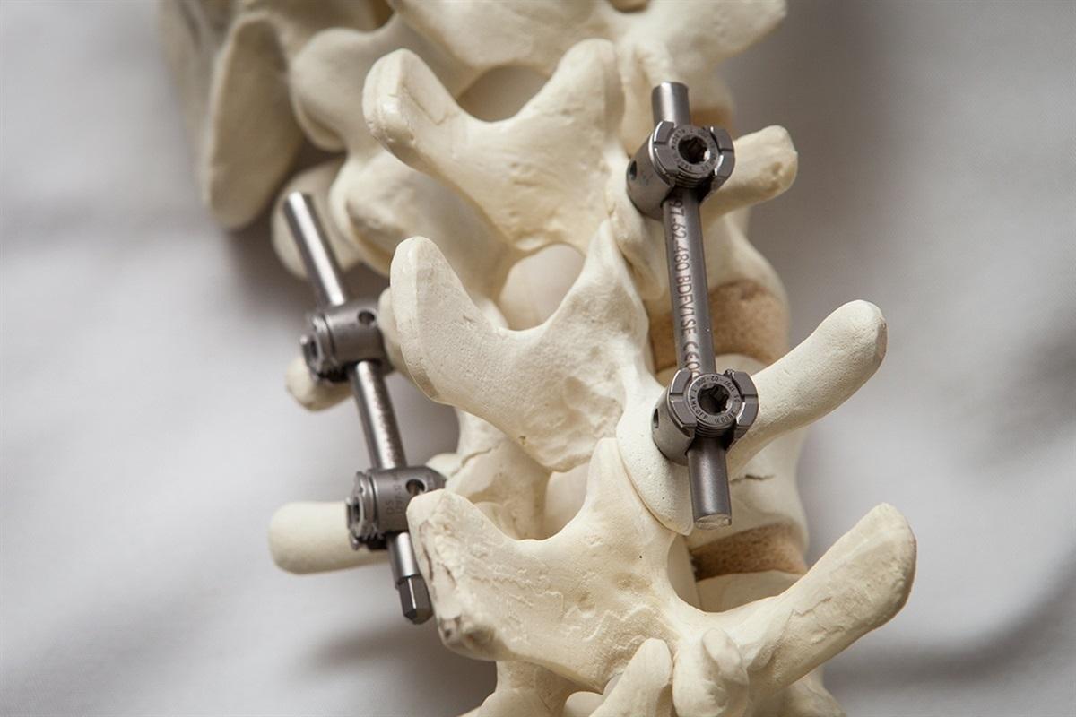 Фото: удаление грыжи позвоночника и установка имплантатов