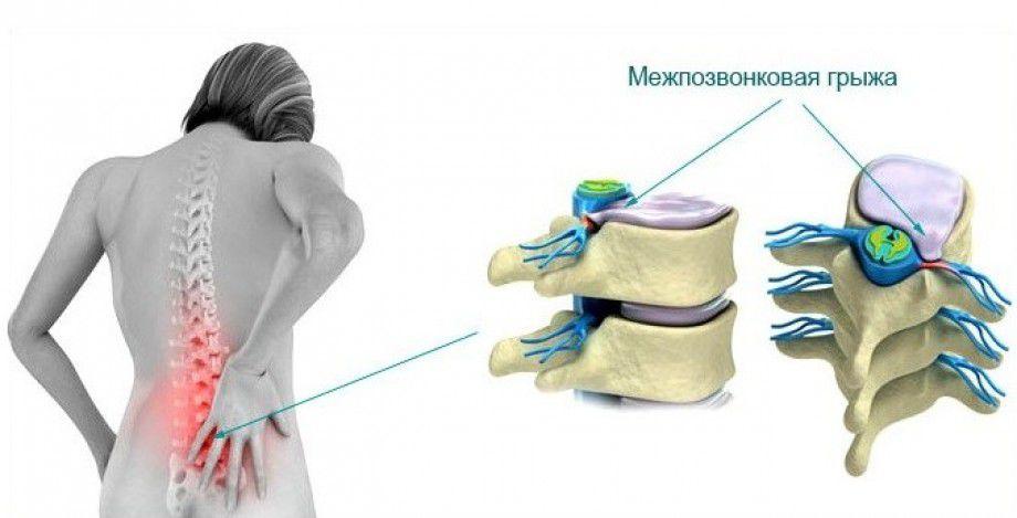 Фото: Медицинское лечение грыжи позвоночника