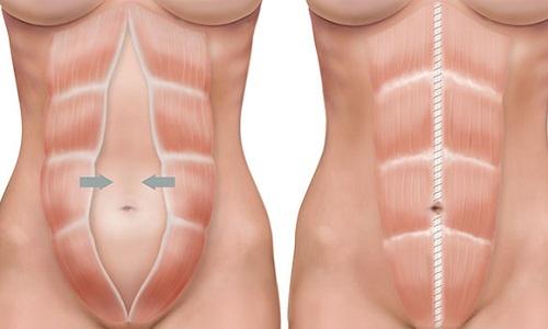Пупочная грыжа после беременности может развиться на фоне диастаза - расхождения мышц брюшного пресса во время беременности