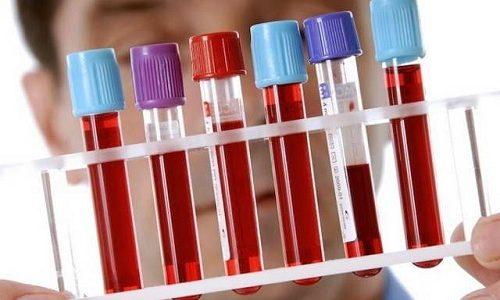 Изменения в биохимическом анализе крове свидетельствуют о нарушении обменных процессов в организме человека