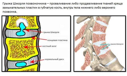 Грыжа Шморля в большинстве случаев является генетическим заболеванием или формируется в раннем детстве.