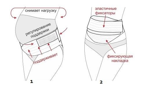 Конструкция дородового (1) и послеродового (2) бандажей