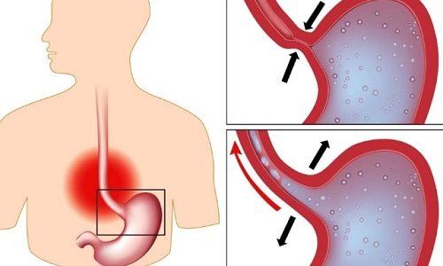 На фоне грыжи у новорожденных часто формируется рубцовый стеноз. Данное нарушение представляет собой сужение просвета пищевода в результате разрастания соединительной ткани из-за разрушения слизистой оболочки