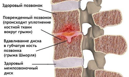 Грыжа Шморля — это продавливание хрящевой ткани межпозвоночного диска в тело позвонка