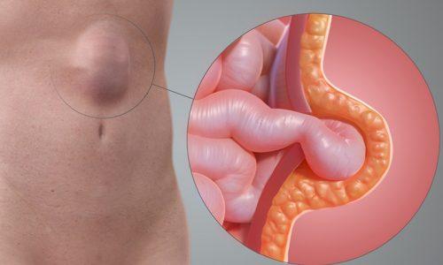 Грыжа кишечника - обобщенное понятие, которое подразумевает любое грыжевое образование, приводящее к выпячиванию передней стенки брюшной полости по причине смещения в грыжевой мешок органов пищеварительной системы.