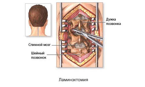 Ламинэктомия - операция, во время которой полностью или частично удаляют дужку пораженного позвонка