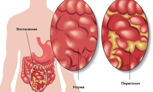 В результате ущемления пупочной грыжи развивается перитонит