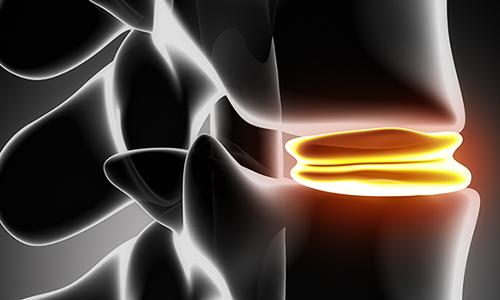 Разновидностью грыжевых дефектов является циркулярная грыжа, возникающая в момент смещения и вываливания диска. Фиброзное кольцо при этом не разрывается и не утрачивает своей целостности