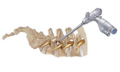 Лазерная реконструкция диска направлена на заживление трещин, после этого болевой синдром исчезает