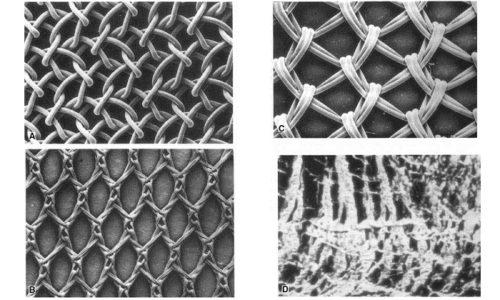 Ассортимент специальных сеток для пластики грыжи постоянно пополняется, появились комплексные, комбинированные, состоящие из нескольких слоев, покрытые изнутри коллагеном или окисленной регенерированной целлюлозой, препятствующей образованию спаек