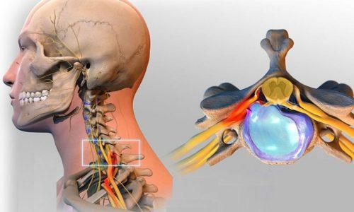 Если в шейном отделе, состоящем из семи позвонков, произошло небольшое выпячивание хряща без разрыва коллагеновых связок, то может наступить компрессия (сжатие) нервных волокон