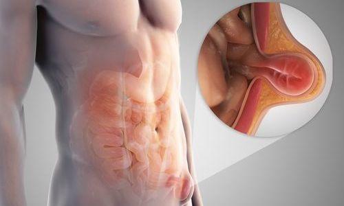 Послеоперационная грыжа на животе возникает в 10% случаев, может появиться как сразу после хирургического вмешательства, так и через отдаленный промежуток времени