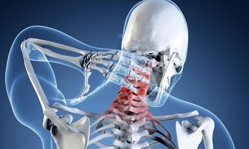 Грыжа шейного отдела позвоночника является наиболее частой причиной болевых ощущений в шее и плече