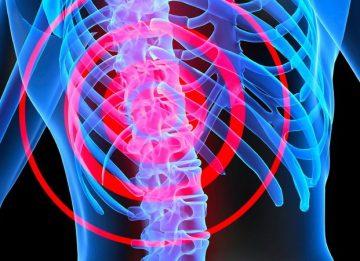 Причины развития спинномозговой грыжи и методы ее устранения